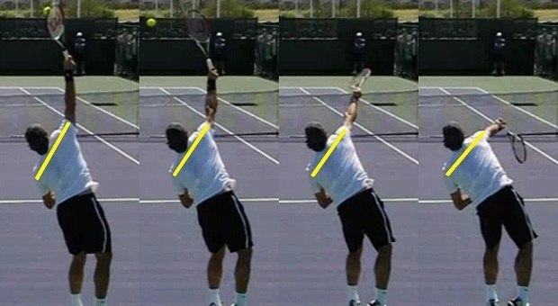 shoulder over shoulder serve